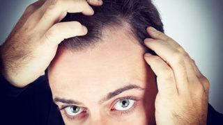 脱毛症で悩む方必見! AGAの症状や治療・予防法を徹底紹介!